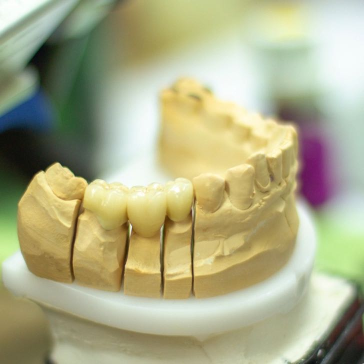 tooth-replacement-3532981_1920